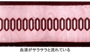さらさら流れる血液の画像